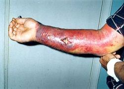 Anthrax - diseases caused by microbes