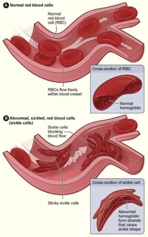 Sickle-Cell Anaemia